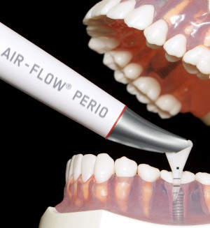 Perio-Flow-handpiece_treatment-on-model_right_WITH-MARKING_low-res